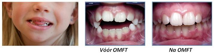 tanden progress